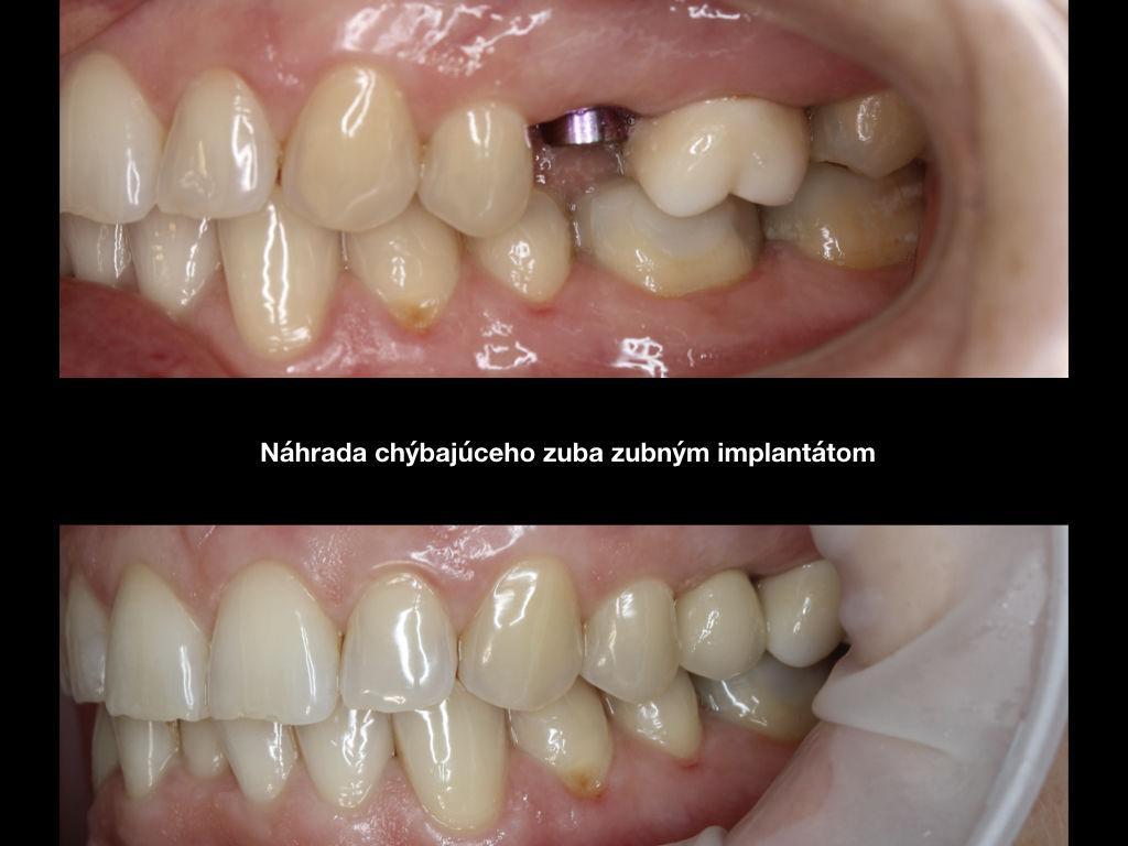 zubné implantáty